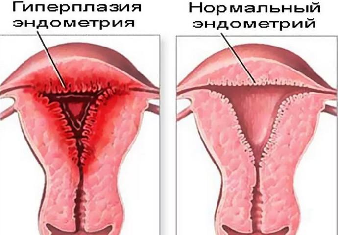 схема болезни
